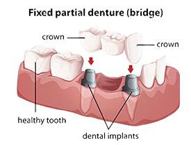 Dental Bridges | Kenneth Yates DDS | Beverly Hills, CA 90212