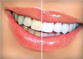 Teeth Whitening | Kenneth Yates DDS | Beverly Hills, CA 90212